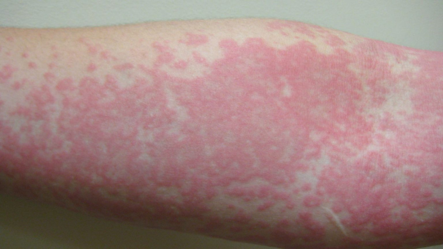 Skin rash may be another sign of Coronavirus